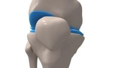 Gelenkknorpel im menschlichen Knie