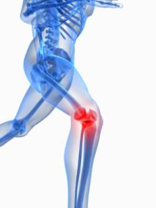 Gelenkkapseln gegen Gelenkschmerzen - was hilft..