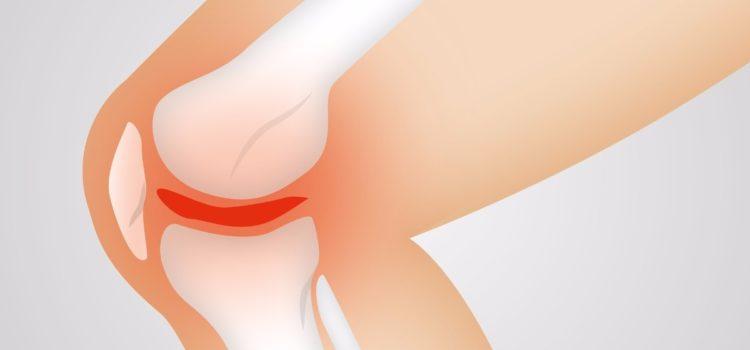 Gelenktherapien zur Vorbeugung und Linderung