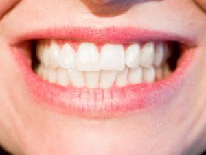 zähne-knirschen