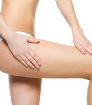 Kollagen Anti-Cellulite